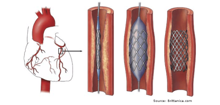 Example of coronary artery sents and placement